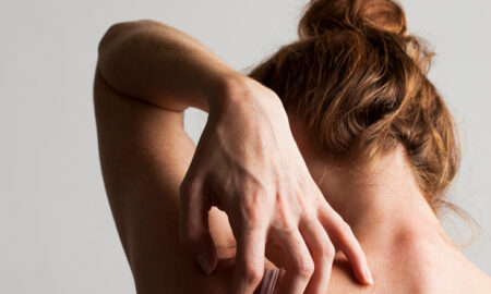 What are scabies and Causes of scabies